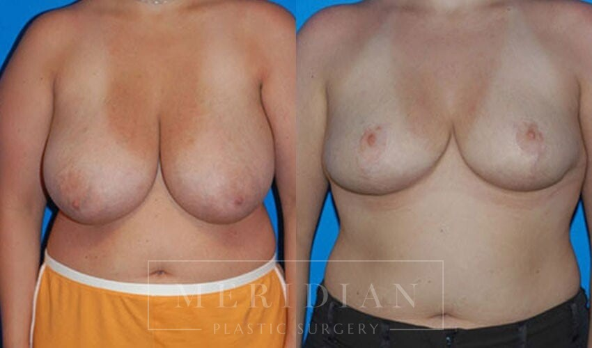 tjelmeland-meridian-austin-breast-reduction-patient-1-1