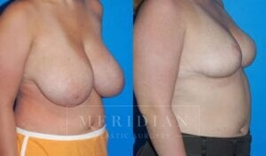 tjelmeland-meridian-austin-breast-reduction-patient-1-2