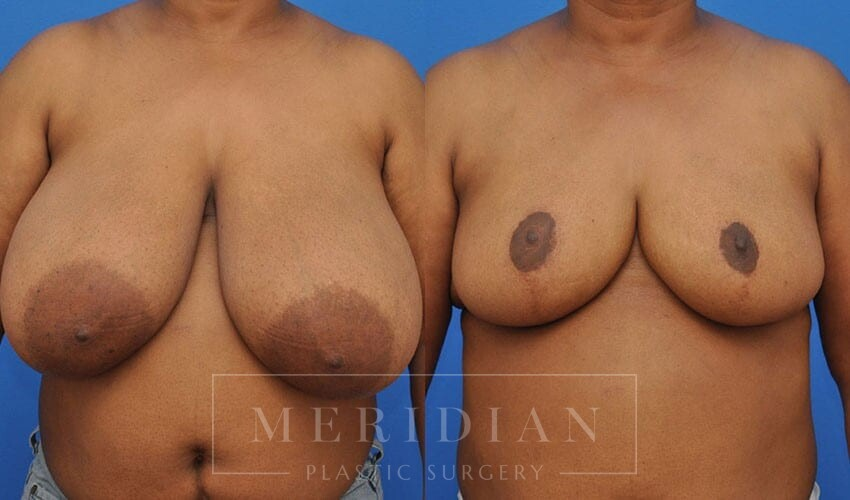 tjelmeland-meridian-austin-breast-reduction-patient-10-1