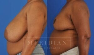 tjelmeland-meridian-austin-breast-reduction-patient-10-2