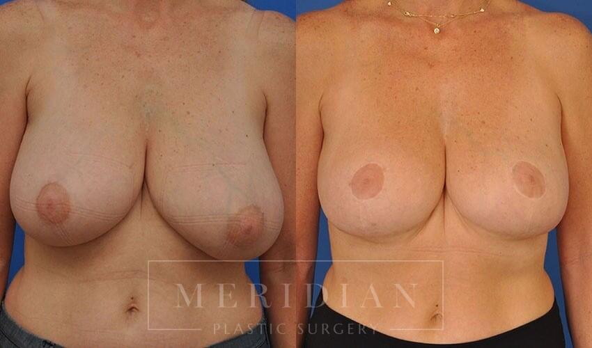 tjelmeland-meridian-austin-breast-reduction-patient-11-1