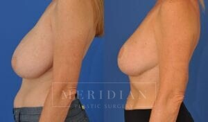 tjelmeland-meridian-austin-breast-reduction-patient-11-2