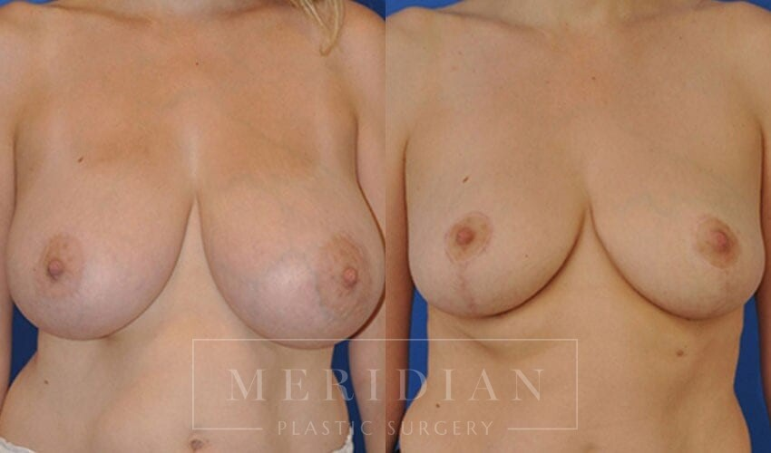 tjelmeland-meridian-austin-breast-reduction-patient-3-1
