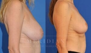 tjelmeland-meridian-austin-breast-reduction-patient-3-2