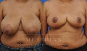 tjelmeland-meridian-austin-breast-reduction-patient-4-1