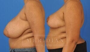 tjelmeland-meridian-austin-breast-reduction-patient-4-2