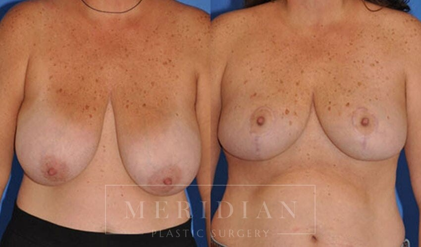 tjelmeland-meridian-austin-breast-reduction-patient-5-1