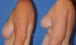tjelmeland-meridian-austin-breast-reduction-patient-5-2