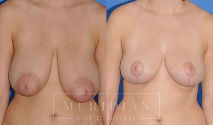 tjelmeland-meridian-austin-breast-reduction-patient-6-1