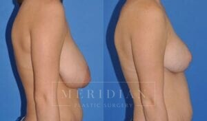 tjelmeland-meridian-austin-breast-reduction-patient-6-2