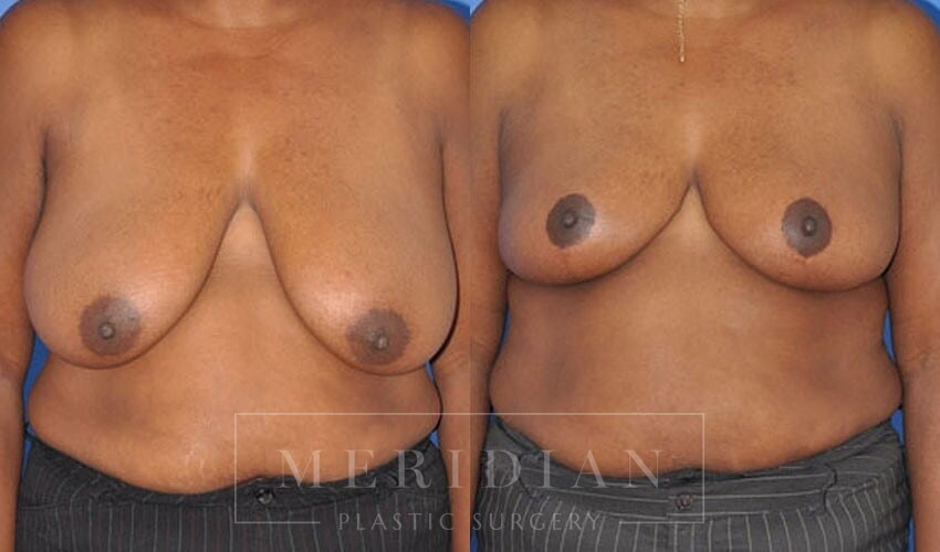 tjelmeland-meridian-austin-breast-reduction-patient-7-1