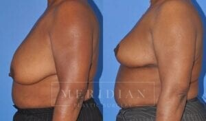 tjelmeland-meridian-austin-breast-reduction-patient-7-2