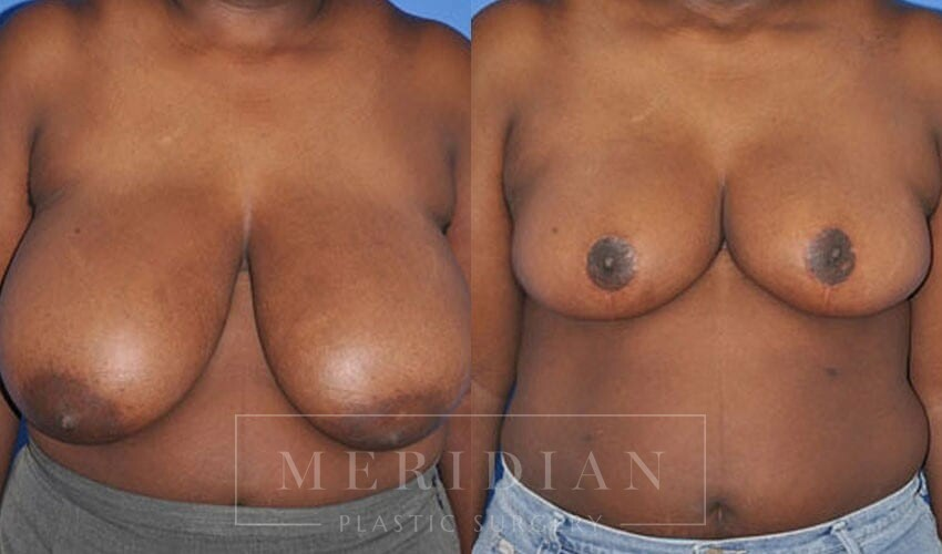 tjelmeland-meridian-austin-breast-reduction-patient-8-1