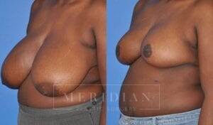 tjelmeland-meridian-austin-breast-reduction-patient-8-2