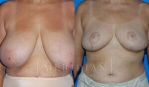 tjelmeland-meridian-austin-breast-reduction-patient-9-1
