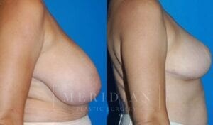 tjelmeland-meridian-austin-breast-reduction-patient-9-2