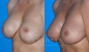 tjelmeland-meridian-austin-breast-revision-patient-1-2