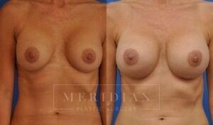 tjelmeland-meridian-austin-breast-revision-patient-10-1