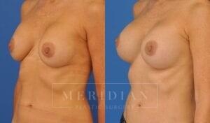 tjelmeland-meridian-austin-breast-revision-patient-10-2