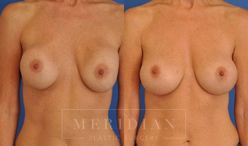 tjelmeland-meridian-austin-breast-revision-patient-2-1