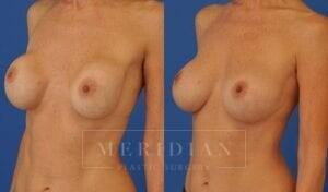 tjelmeland-meridian-austin-breast-revision-patient-2-2