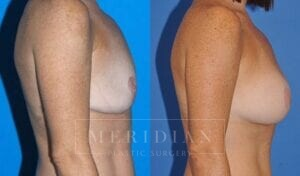 tjelmeland-meridian-austin-breast-revision-patient-3-2