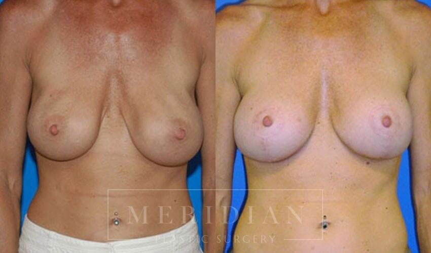tjelmeland-meridian-austin-breast-revision-patient-4-1
