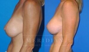 tjelmeland-meridian-austin-breast-revision-patient-4-2