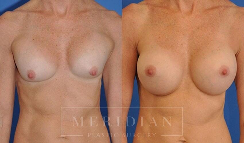 tjelmeland-meridian-austin-breast-revision-patient-5-1