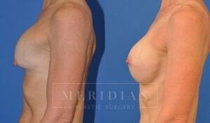 tjelmeland-meridian-austin-breast-revision-patient-5-2