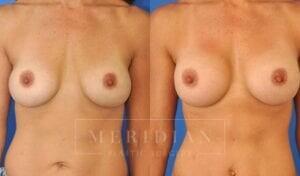 tjelmeland-meridian-austin-breast-revision-patient-6-1