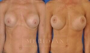 tjelmeland-meridian-austin-breast-revision-patient-7-1