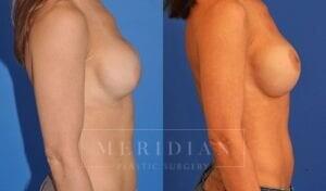 tjelmeland-meridian-austin-breast-revision-patient-7-2
