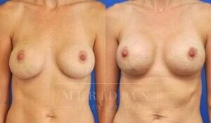 tjelmeland-meridian-austin-breast-revision-patient-8-1