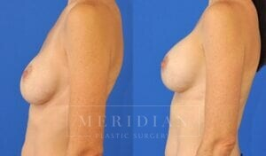 tjelmeland-meridian-austin-breast-revision-patient-8-2