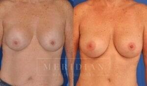 tjelmeland-meridian-austin-breast-revision-patient-9-1