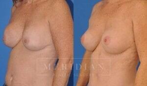 tjelmeland-meridian-austin-breast-revision-patient-9-2