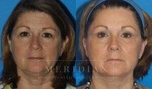 tjelmeland-meridian-austin-brow-lift-patient-1-1