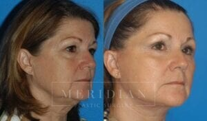 tjelmeland-meridian-austin-brow-lift-patient-1-2