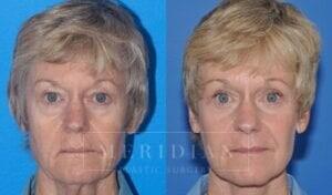 tjelmeland-meridian-austin-brow-lift-patient-2-1