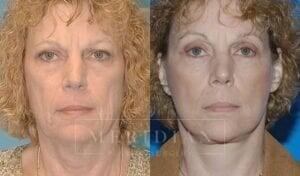 tjelmeland-meridian-austin-brow-lift-patient-3-1