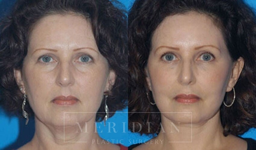 tjelmeland-meridian-austin-brow-lift-patient-4-1