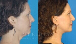 tjelmeland-meridian-austin-brow-lift-patient-4-2
