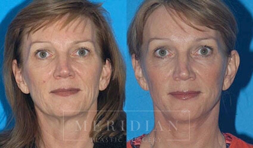 tjelmeland-meridian-austin-brow-lift-patient-5-1
