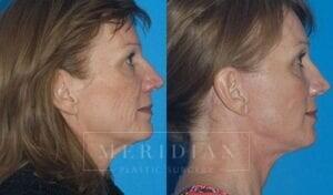tjelmeland-meridian-austin-brow-lift-patient-5-2