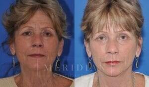tjelmeland-meridian-austin-brow-lift-patient-6-1