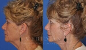 tjelmeland-meridian-austin-brow-lift-patient-6-3