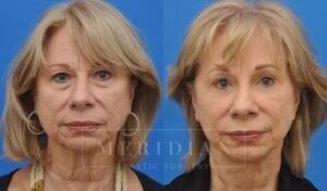 tjelmeland-meridian-austin-brow-lift-patient-7-1
