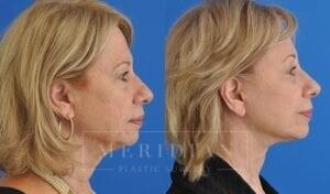 tjelmeland-meridian-austin-brow-lift-patient-7-3