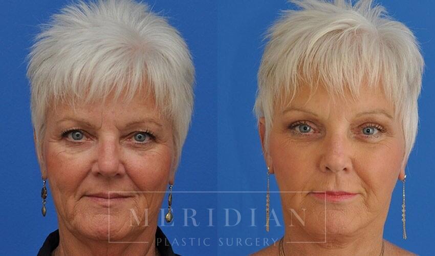tjelmeland-meridian-austin-brow-lift-patient-8-1